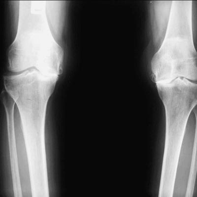 Artros i knä, medial - insidan