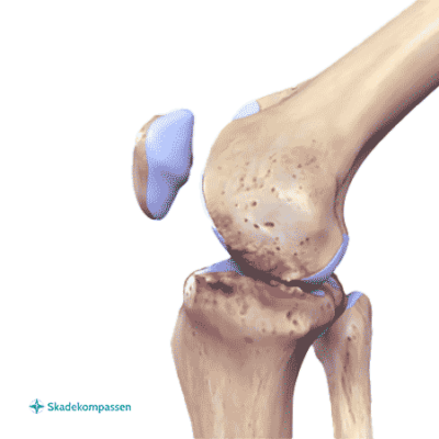 Artros i knä