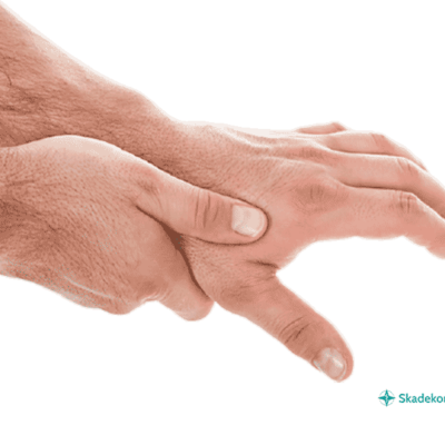 Tumbasartros och ont i tumme