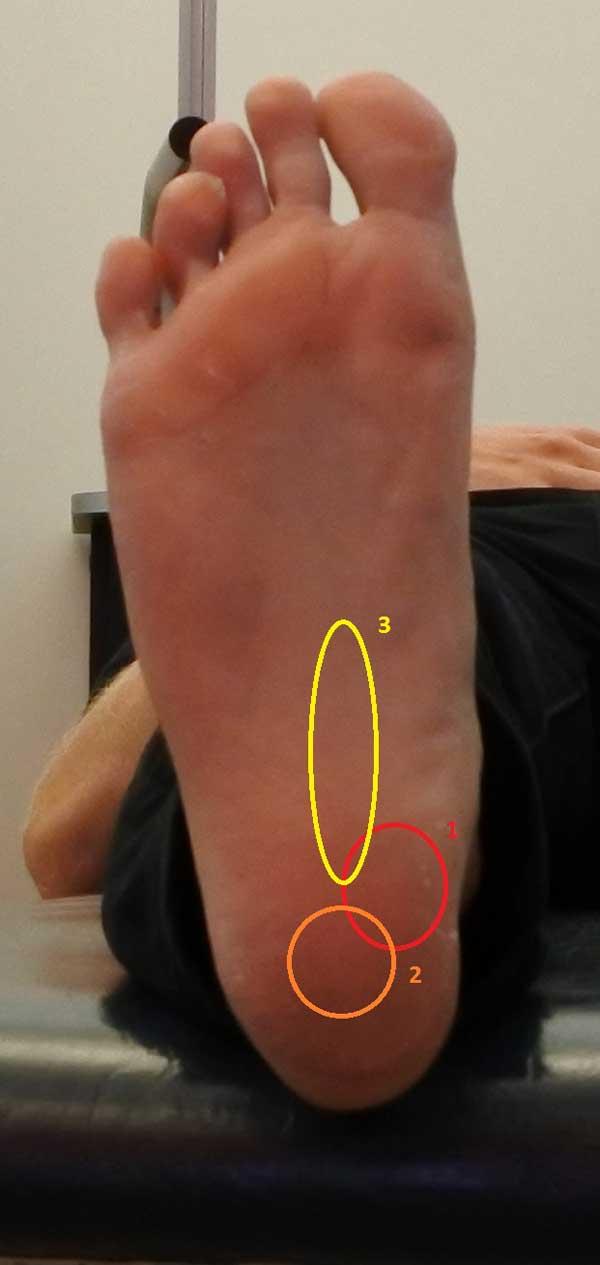 Vanlig placering av smärtan vid hälsporre