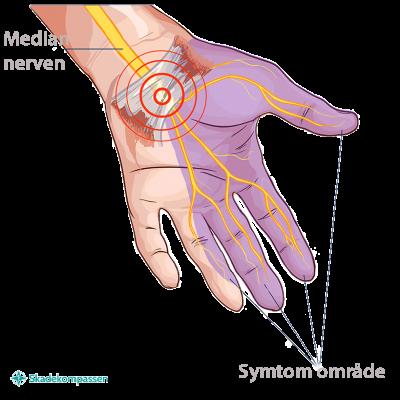 Karpaltunnelsyndrom - smärta i hand och fingrar, utbredningsområde för symtomen smärta och domning