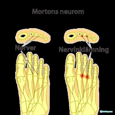 Mortons neurom - klämda nerver i framfoten ger smärta i framfot och tår