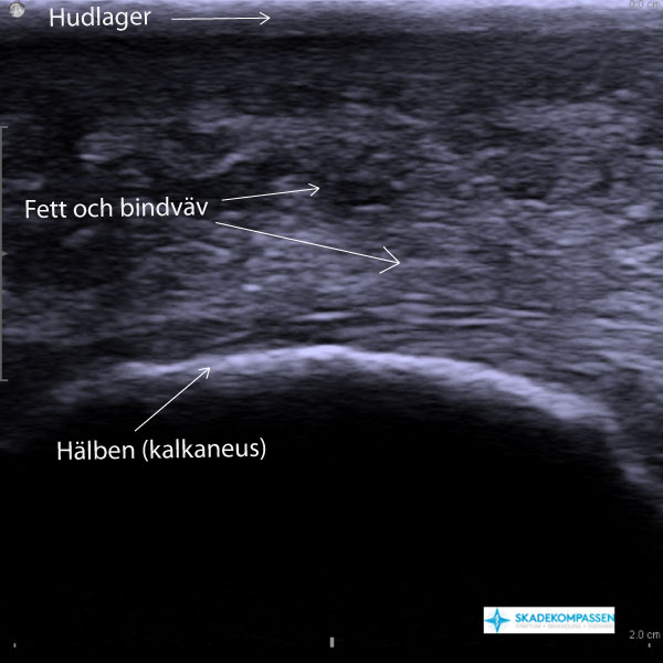 Hälkudde ultraljudsbild