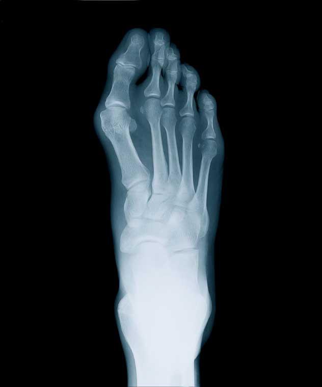 Röntgen av hallux valgus